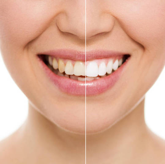 teeth whitening service