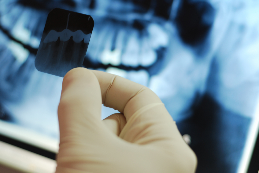 dental-xrays